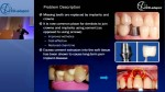 Dental Implant Cement Flow Simulations with STAR-CCM+